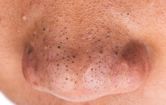 How To Remove Blackheads From Nose Naturally 1