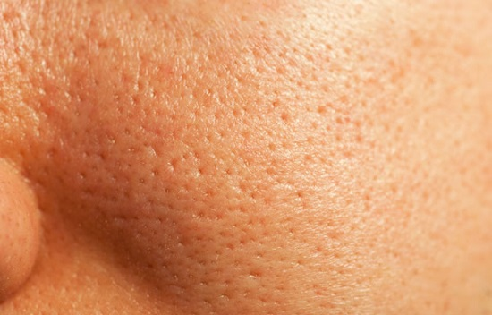 how to reduce pore size permanently 1