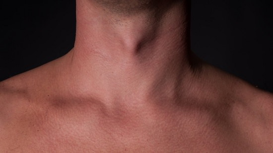 Collarbone Lymph Nodes