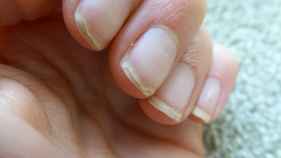 Is Coconut Oil Good for Nails and Cuticles2