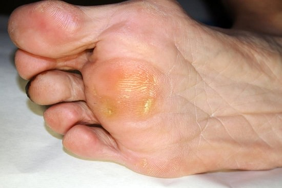 Home Remedy for Callus1