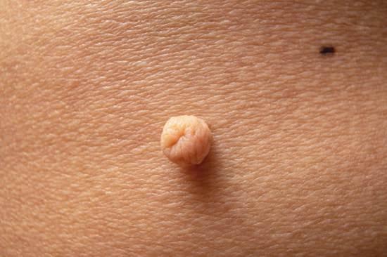 Liquid Bandage for Skin Tags1