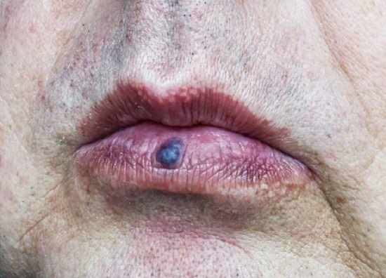 Venous Lake Lip Treatment1
