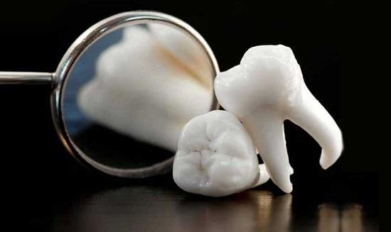 Can Wisdom Teeth Cause Jaw Pain3