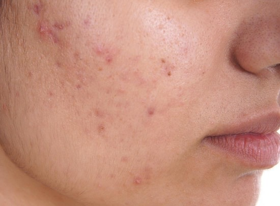 Does Dry Skin Cause Acne1
