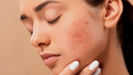 Does Dry Skin Cause Acne3