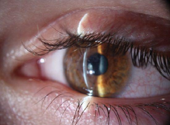 Grinding Spark in The Eye3