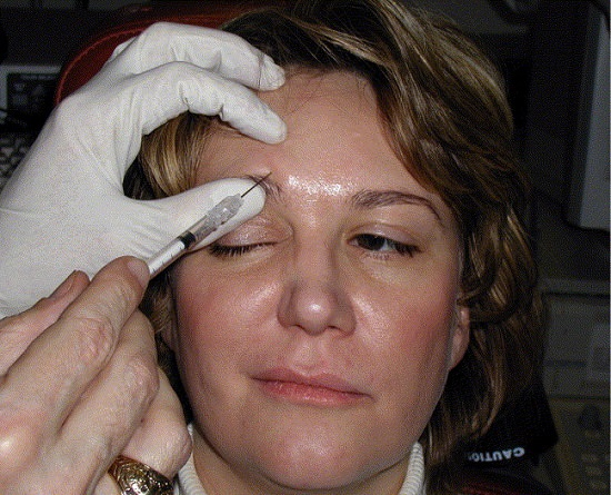 Side Effects of Botox Injections for Hemifacial Spasm2