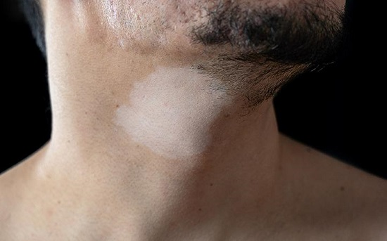 How To Get Rid of Hypopigmentation1